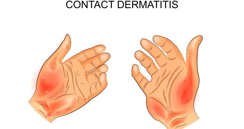 接觸性皮膚炎