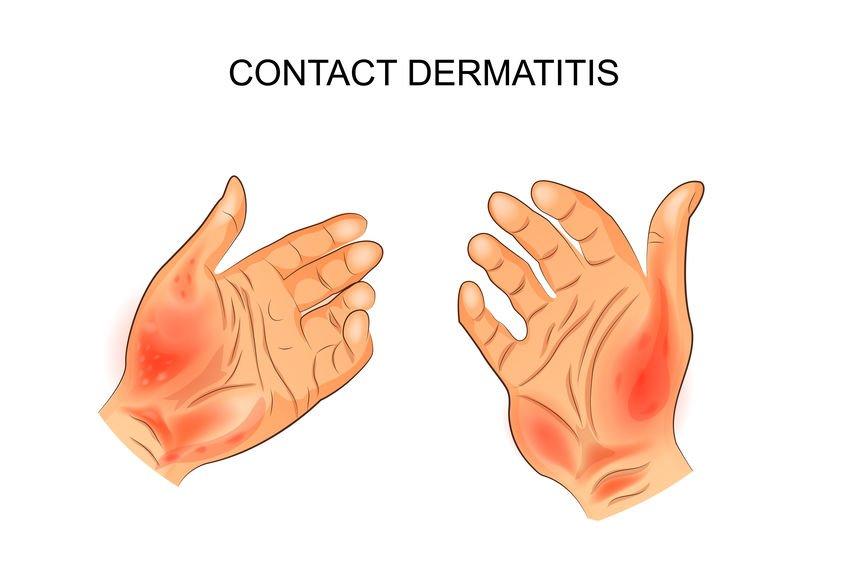 皮膚 炎 性 接触