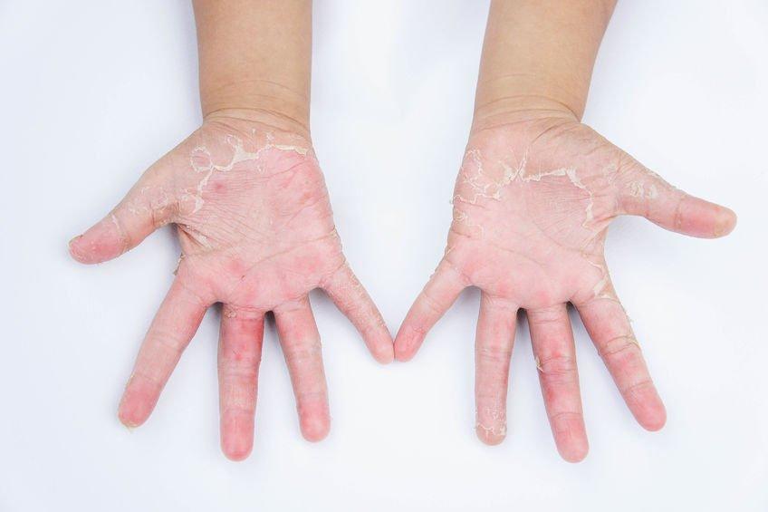 接觸性皮膚炎案例