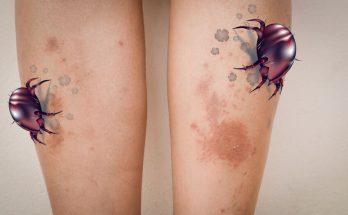 為什麼會得異位性皮膚炎?如何治療與預防?有中醫治療方式嗎?