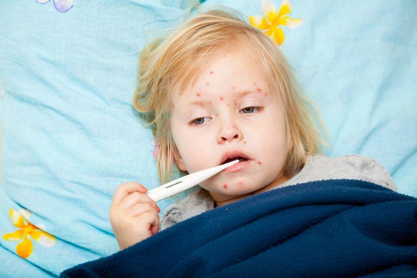 寶寶蕁麻疹