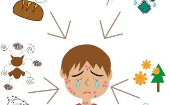 為什麼寶寶有異味性皮膚炎?