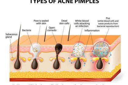 為什麼會長青春痘?青春痘的成因與治療,讓專家告訴你!
