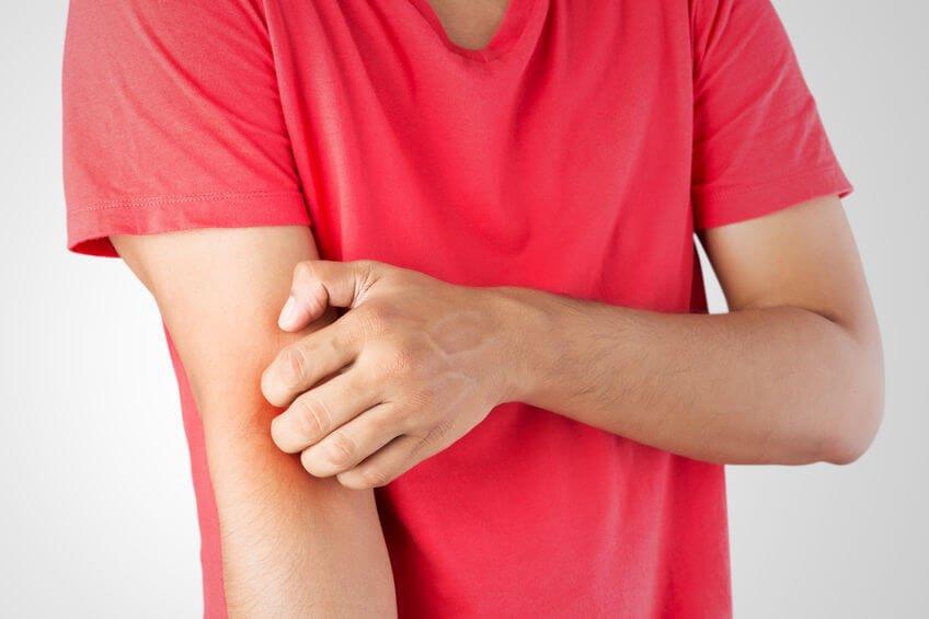 異位性皮膚炎最大症狀:癢、皮膚敏感