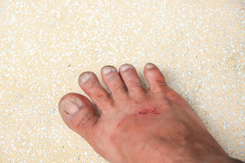 腳上有細小傷口若不慎引起細菌感染,容易導致蜂窩性組織炎