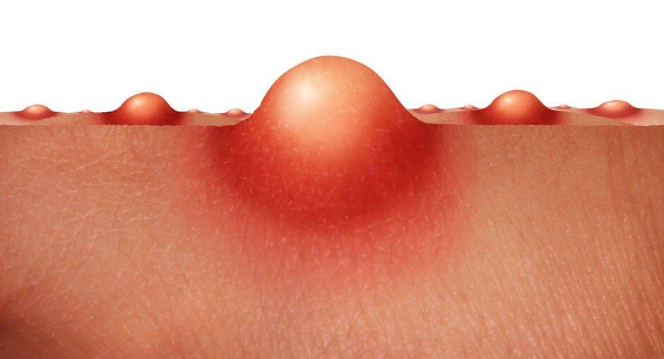 青春痘的病症可分「非發炎性」與「發炎性」