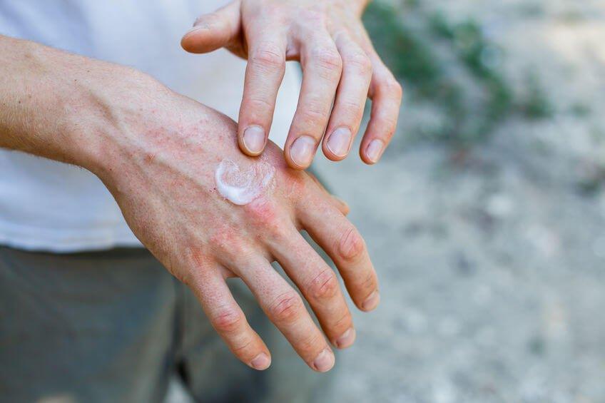 乾癬可以類固醇軟膏來治療,使用上要特別小心,絕對要遵照醫師所囑咐的用量