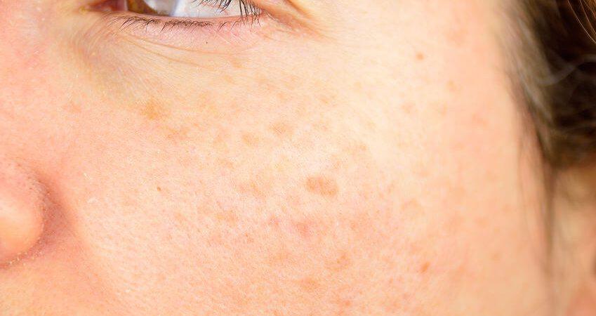 什麼是肝斑?肝斑的症狀、治療、預防,讓專家完整告訴你