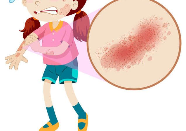 什麼是蕁麻疹?蕁麻疹症狀、治療與改善,專家告訴你