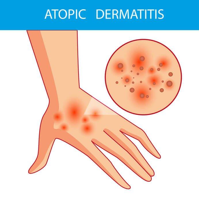 抓癢易產生傷口,引發空氣過敏原,進而觸發異位性皮膚炎