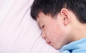 異位性皮膚炎怎麼改善?不可不知的日常保養法告訴您