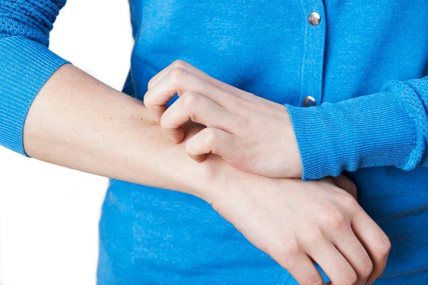 蕁麻疹是一種很癢的皮膚病