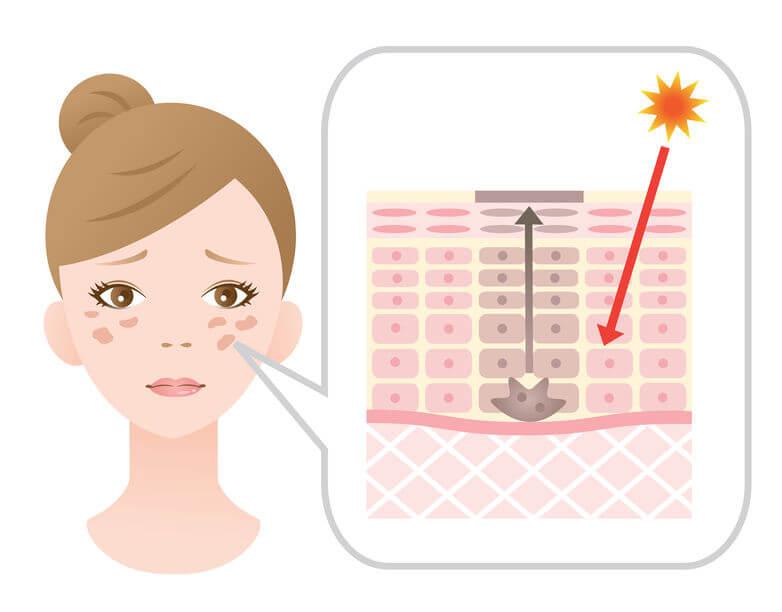 陽光曝曬是造成肝斑的原因之一