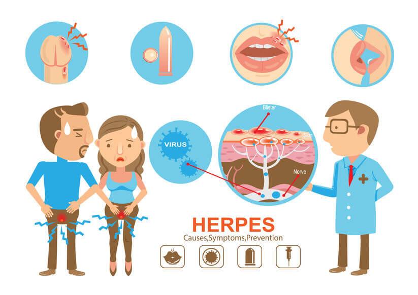 單純皰疹可分唇部皰疹、生殖器皰疹
