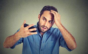 為什麼會禿頭?掉髮又該如何預防?讓專家告訴你!