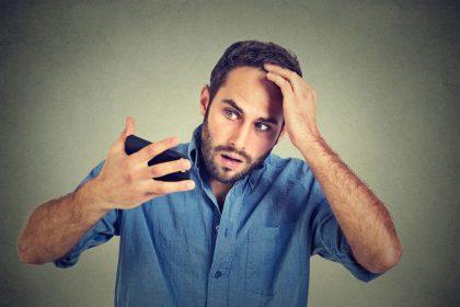 為什麼會禿頭?如何避免掉髮?讓專家告訴你!