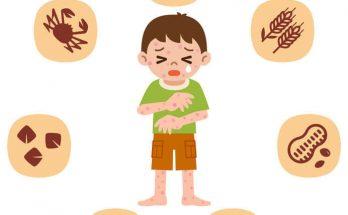異位性皮膚炎飲食常見問題