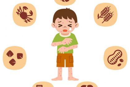 異位性皮膚炎常見問題【飲食篇】